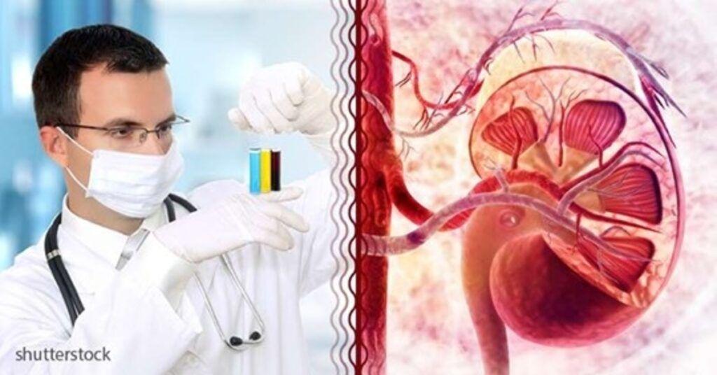 padidėjęs kraujospūdžio baltymas šlapime