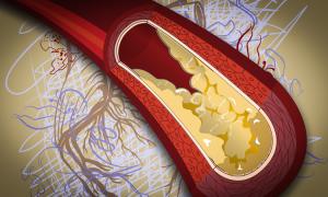 hipertenzijos gydymo metodų forumas