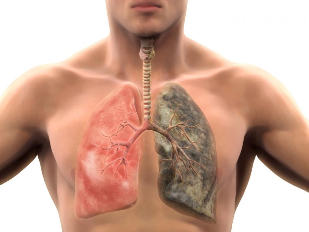 hipertenzija nuo bronchito