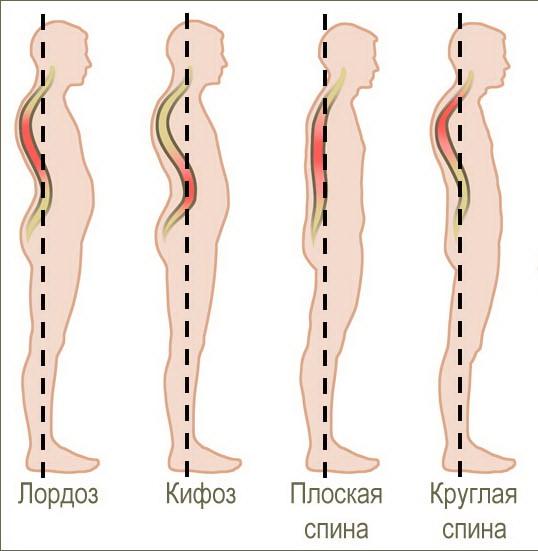 Pratimai stuburo osteochondrozei gydyti. Veiksmingiausi krūtų osteochondrozės pratimai namuose