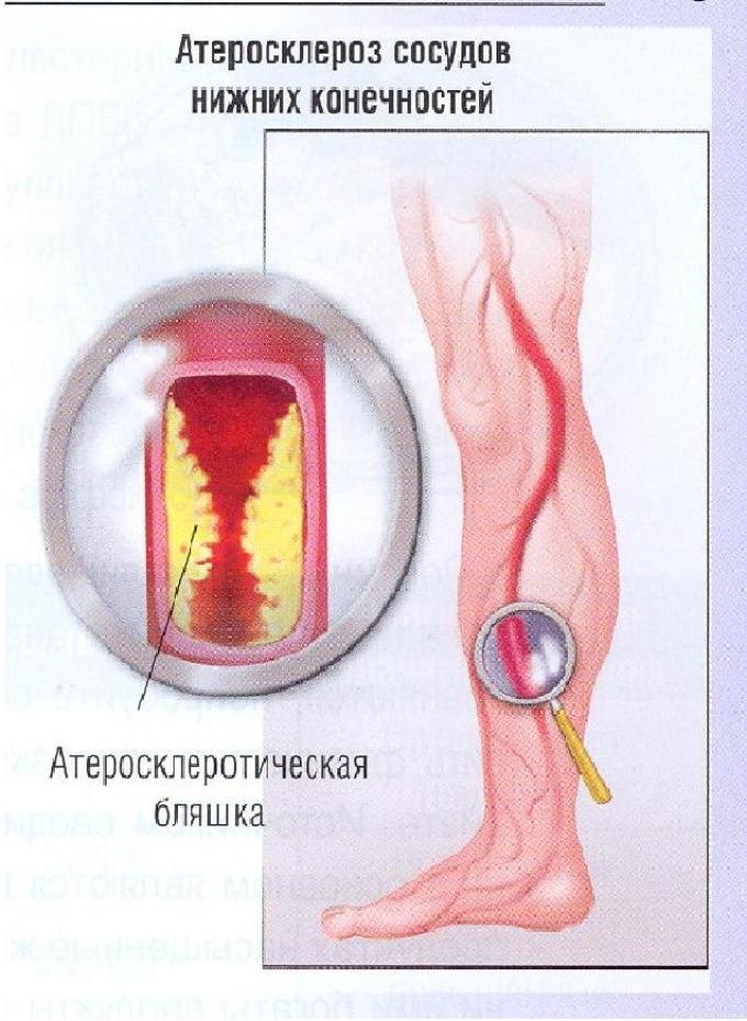 escuzanas sergant hipertenzija)