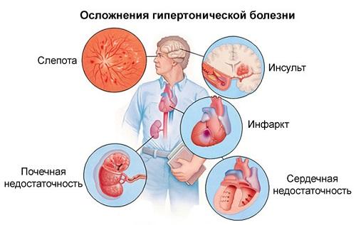 3 laipsnio hipertenzija: simptomai, rizika, gydymas