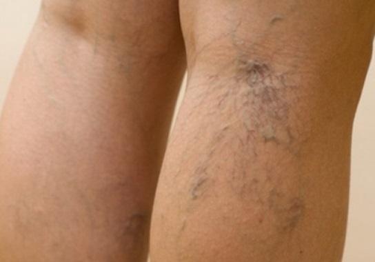 Kojų venų varikozė: simptomai ir gydymas - Hipertenzija - November