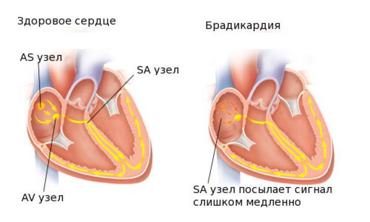 hipertenzija gydoma bradikardija)