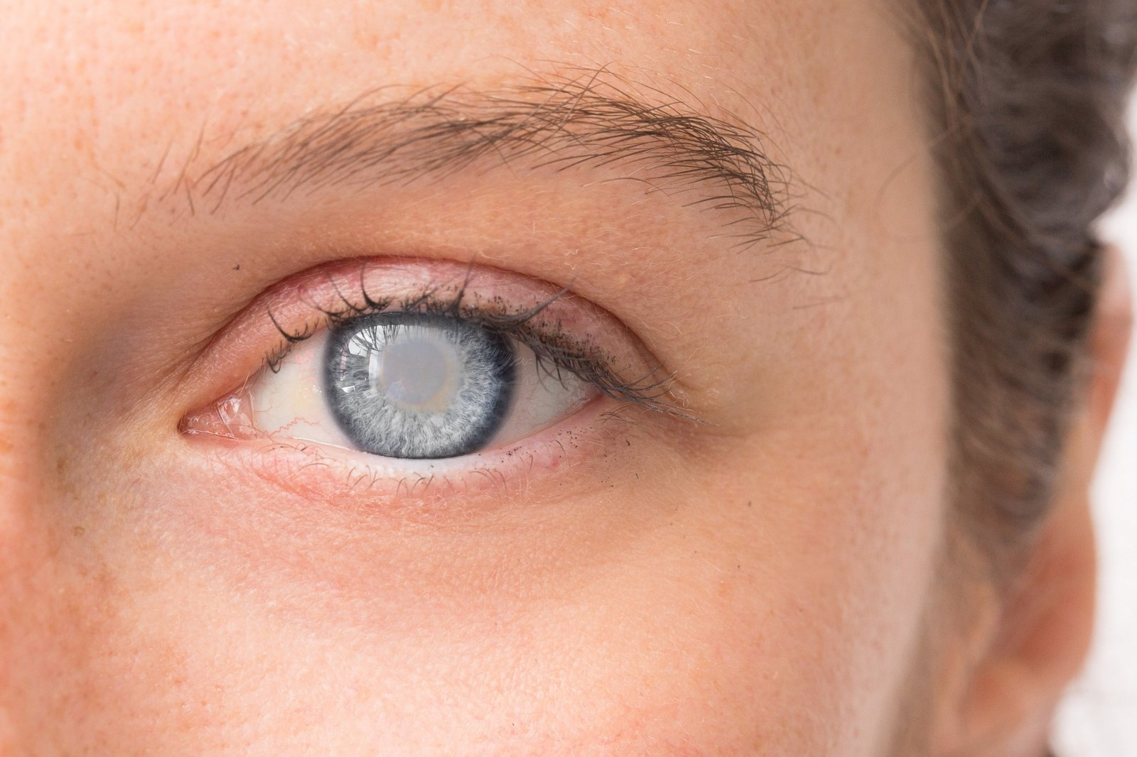 kapiliarai akies hipertenzijoje begonija nuo hipertenzijos