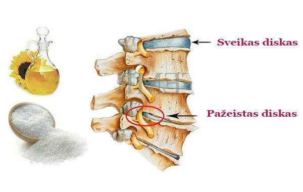 hipertenzija dėl osteochondrozės