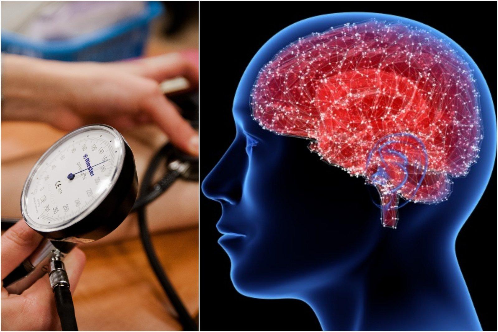smegenų hipertenzija hipertenzija gydoma per dieną