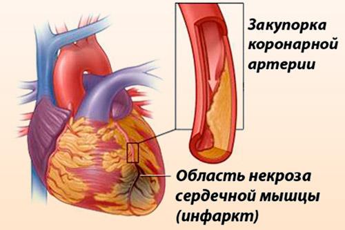 krizinės hipertenzijos gydymas