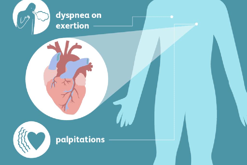 PSO dėl hipertenzijos gydymo