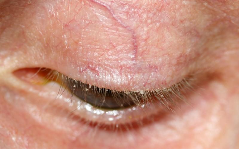 akių vokų ligos hipertenzija)