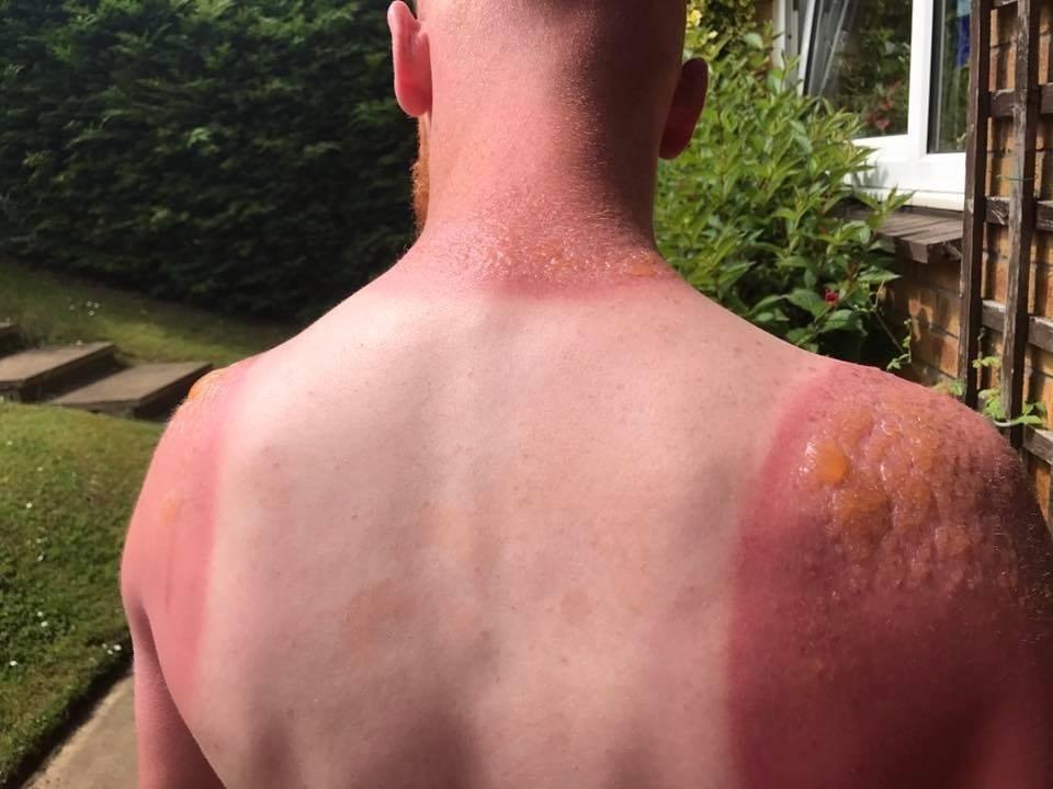 saulės nudegimas ir hipertenzija