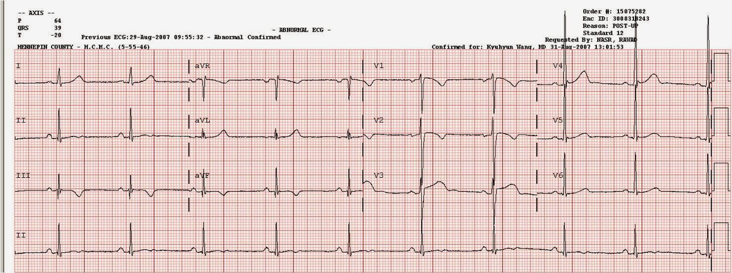 ar EKG rodo hipertenziją)