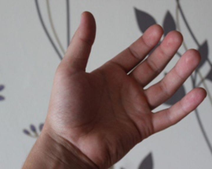 rankų nutirpimas su hipertenzija)