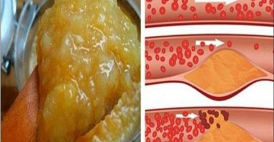 auksinių ūsų hipertenzijai receptai)