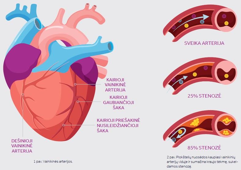 hipertenzija, kad dūrio