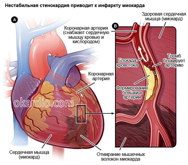Krūtinės angina