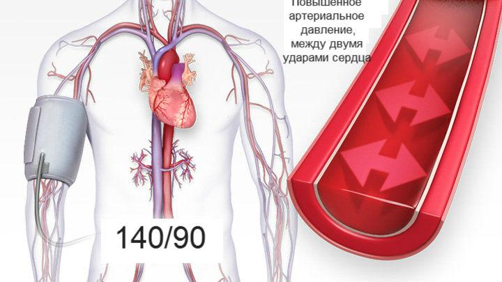 ką viršutinis ir apatinis slėgis reiškia hipertenzijai uzdg nuo hipertenzijos
