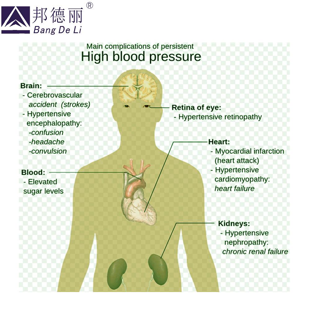 balzamas nuo hipertenzijos