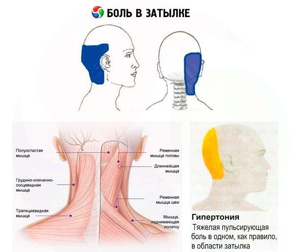 Gimdos kaklelio osteochondrozės hipertenzija: gydymas - Simptomai November