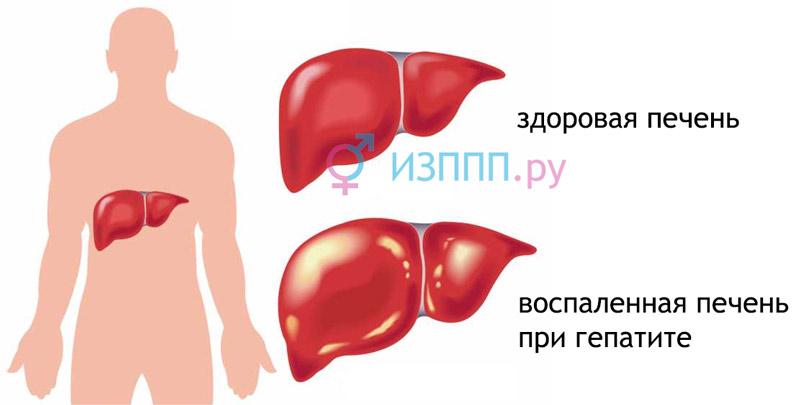 alkagolis nuo hipertenzijos
