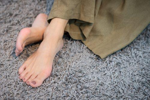 Kojų tinimas žiemą – būna ir taip – jusukalve.lt