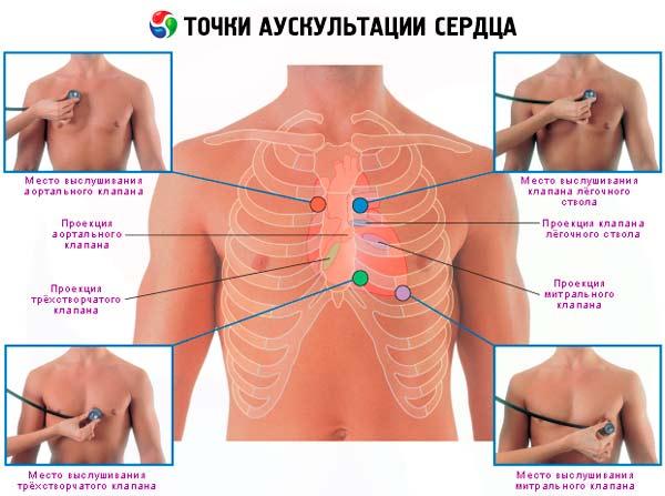širdies auskultacija dėl hipertenzijos