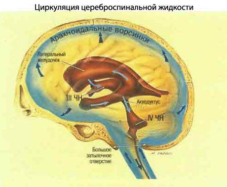 Hidrocefalinis sindromas - Virpėjimas