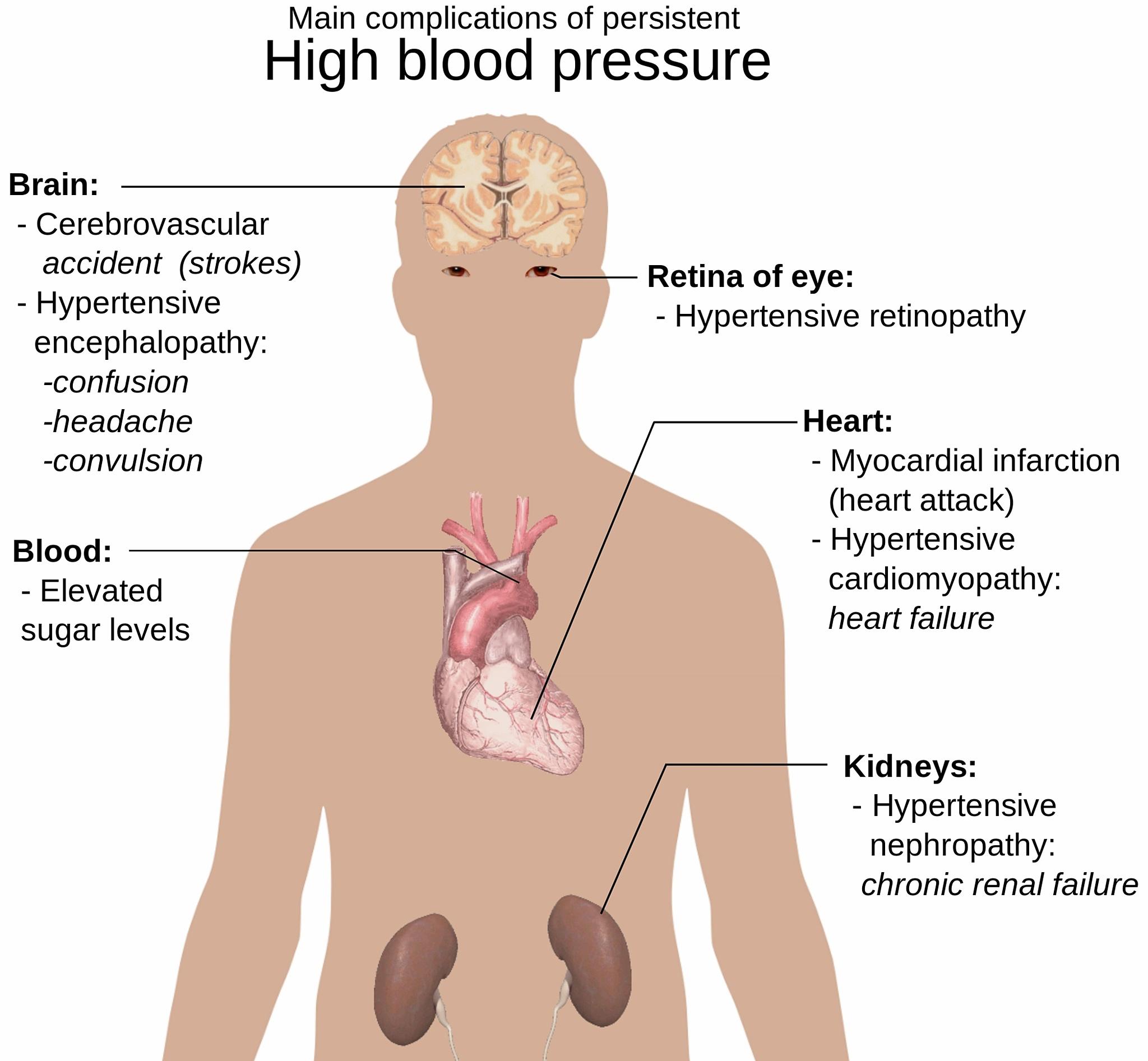 maksimalus širdies ritmas ir sveikata)