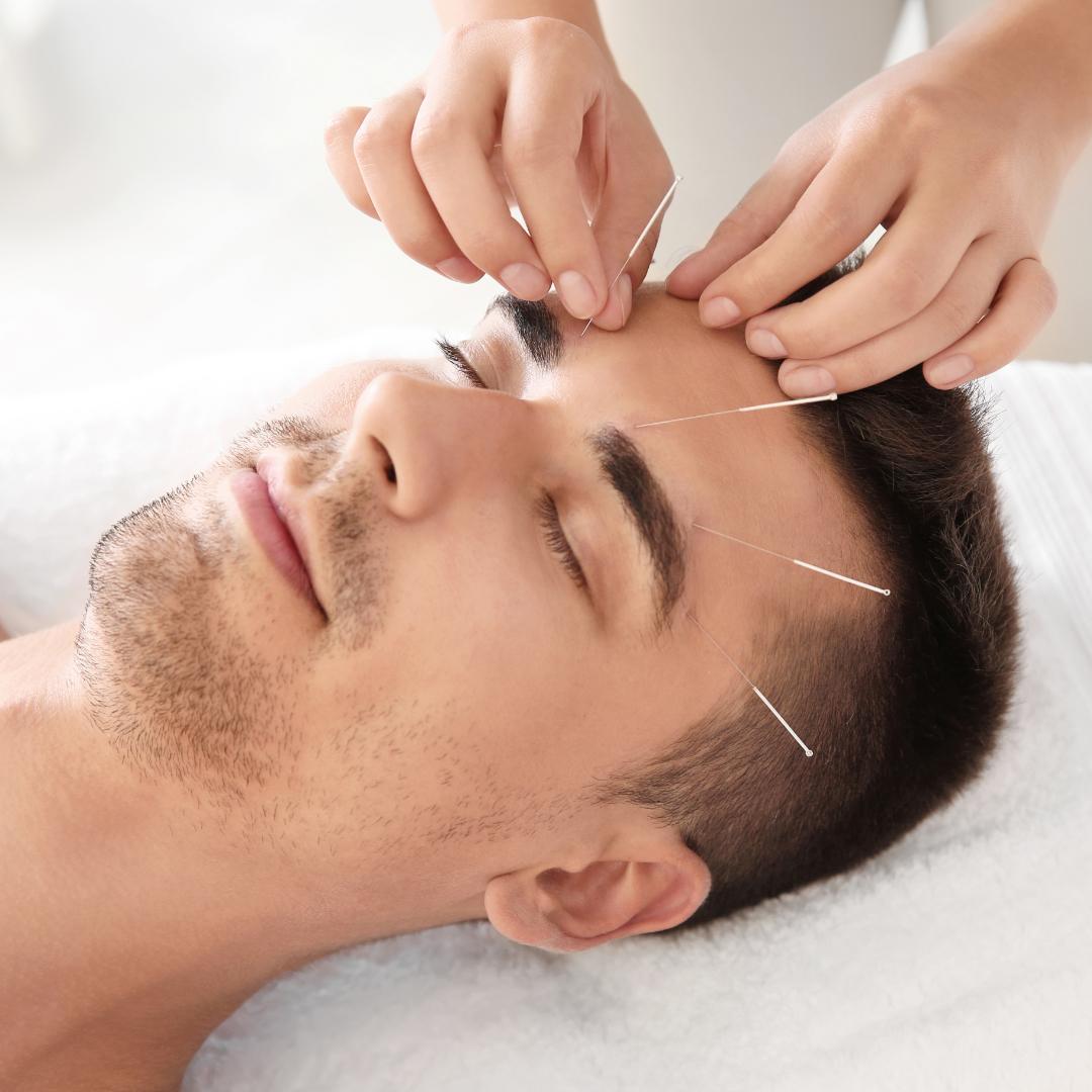 Akupunktūra – Natūralaus gydymo centras