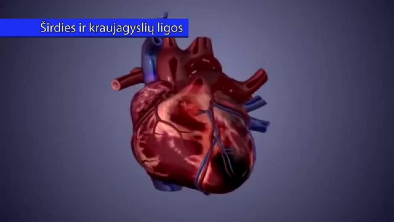 hipertenzija, kaip sustiprinti kraujagysles)