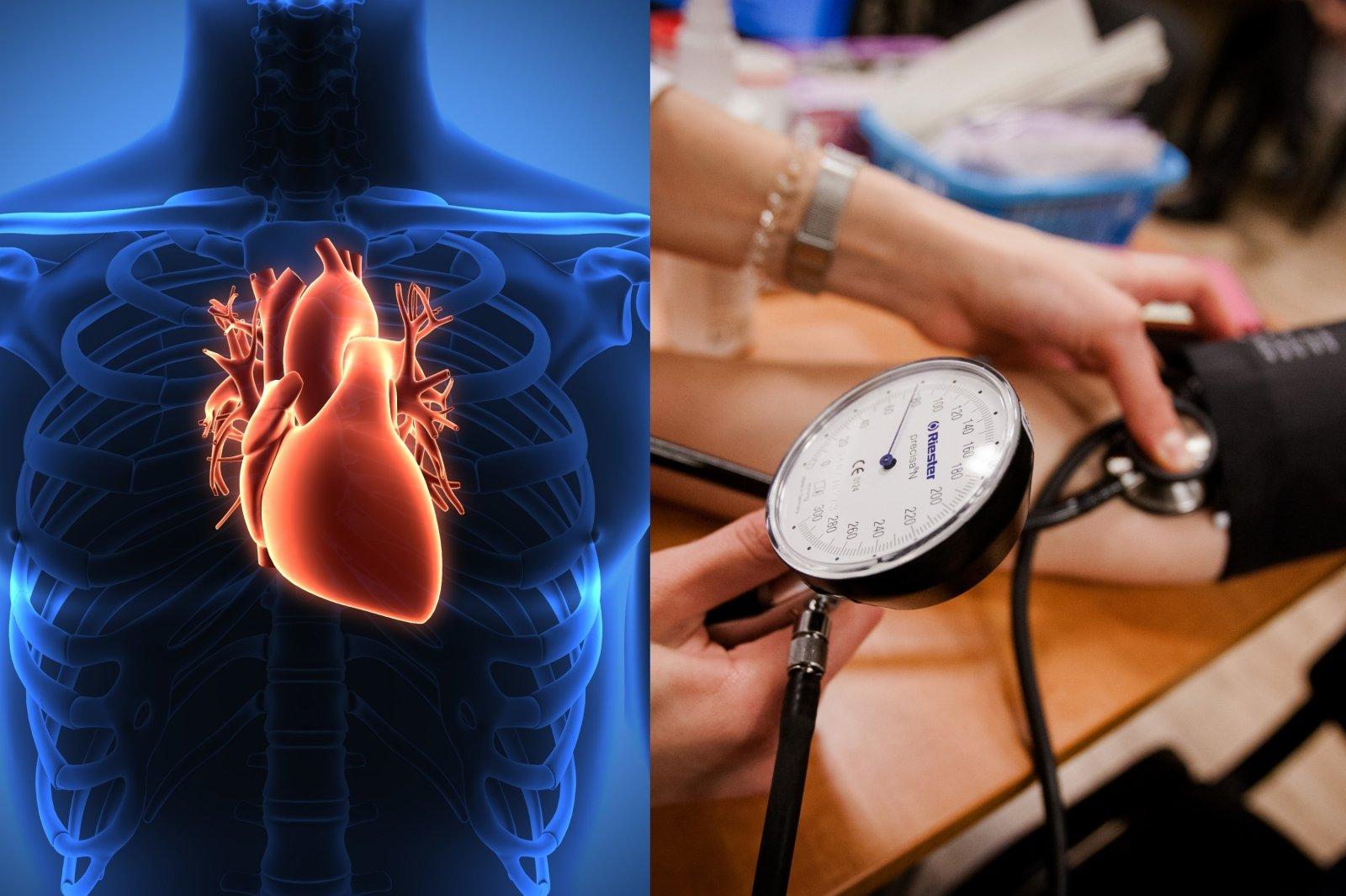 hipertenzijos požymiai, ką daryti)