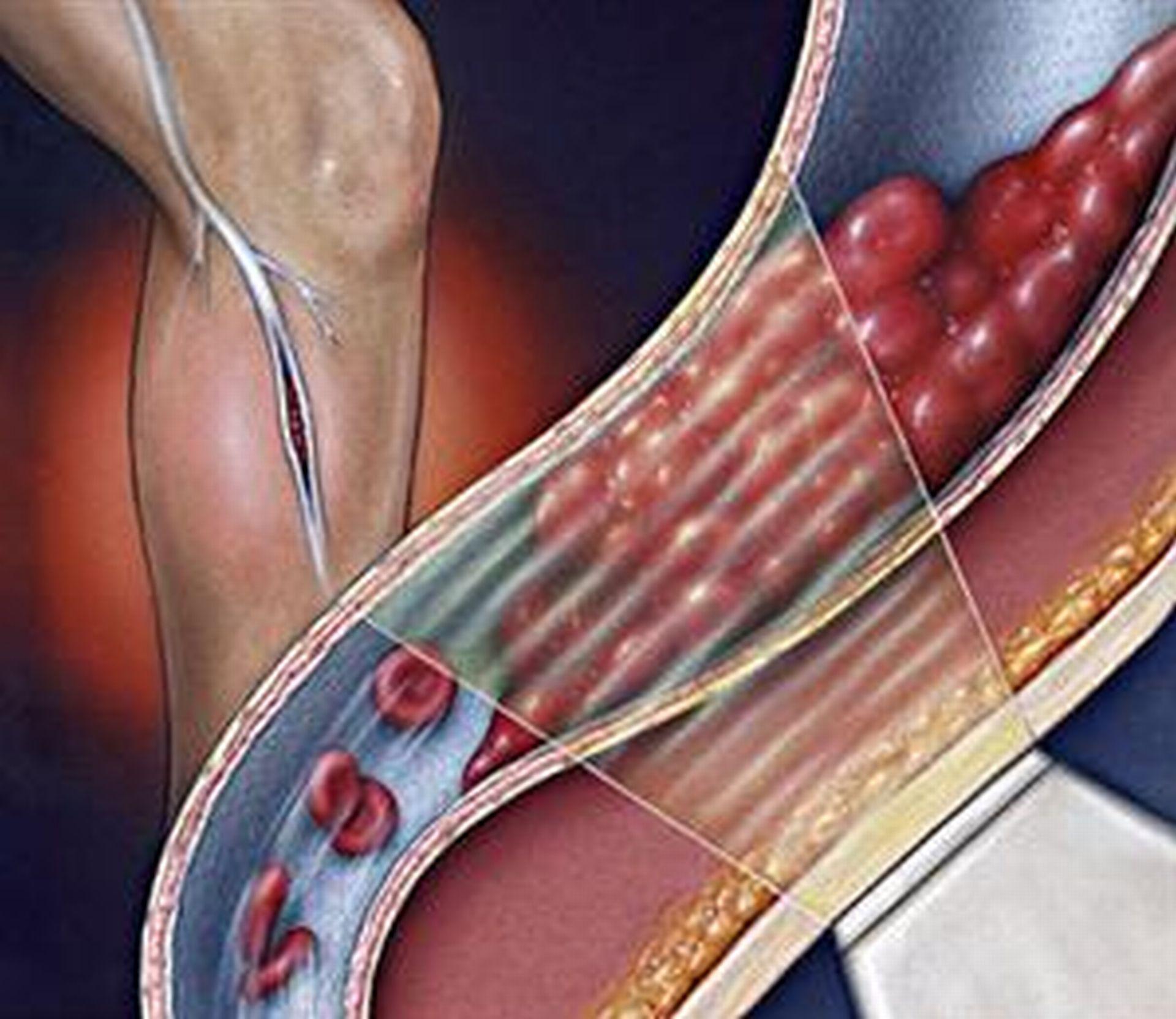 hipertenzijos slėgis nuo 160 iki 100