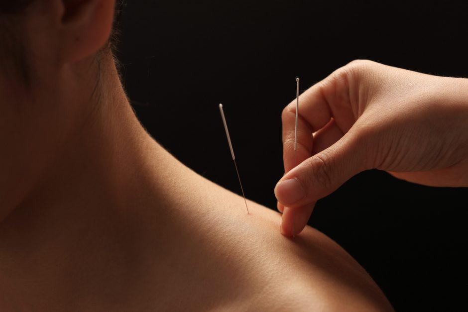 hipertenzijos gydymas akupunktūra