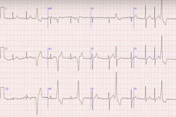 ar EKG rodo hipertenziją