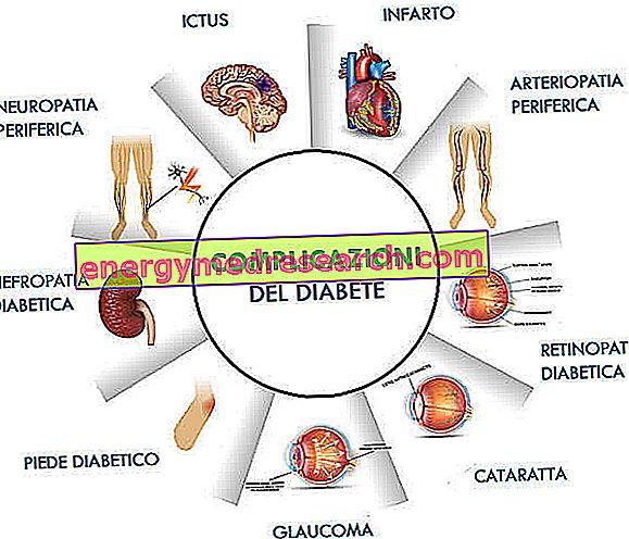 diabetikams nuo hipertenzijos vaistų nuo hipertenzijos rūšių