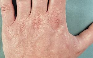dėmės ant hipertenzijos kojų kaip hipertenziją gydyti ugniažole