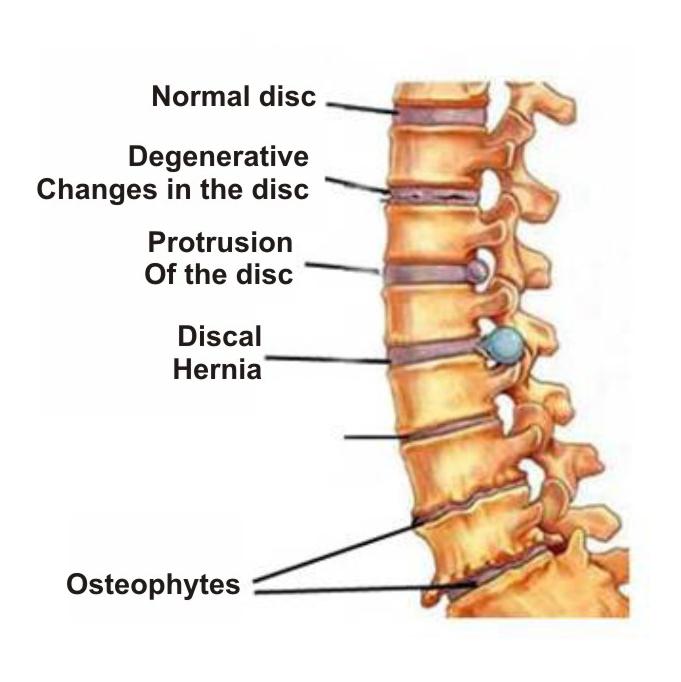 krūtinės ląstos stuburo osteochondrozė ir hipertenzija)