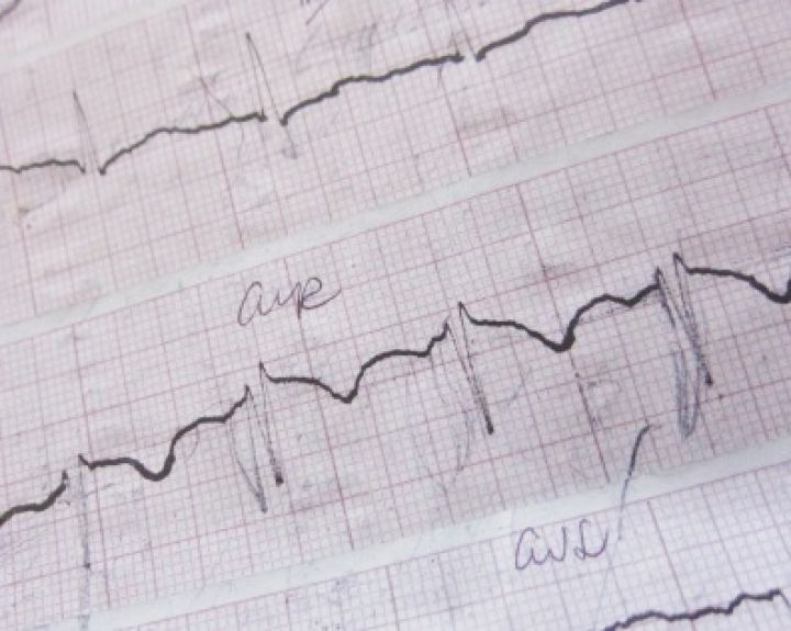 širdies aritmija ir hipertenzija)