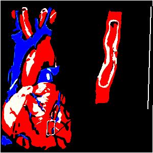 hipertenzijos smeg rodikliai nuo hipertenzijos ir 150 ligų