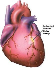koronarinės ligos sveikatos informacija apie širdį