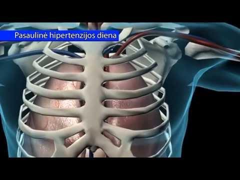 griaučių raumenų hipertenzija