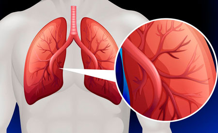 Viskas apie širdies aneurizmą - Hipertenzija November