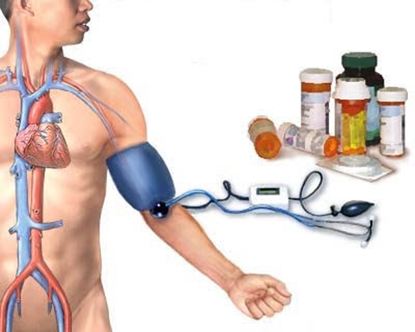 hipertenzija, kas veda)