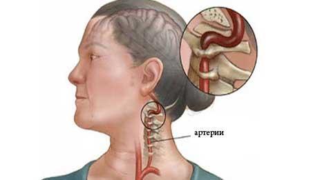 hipertenzija stuburo arterijos sindromas