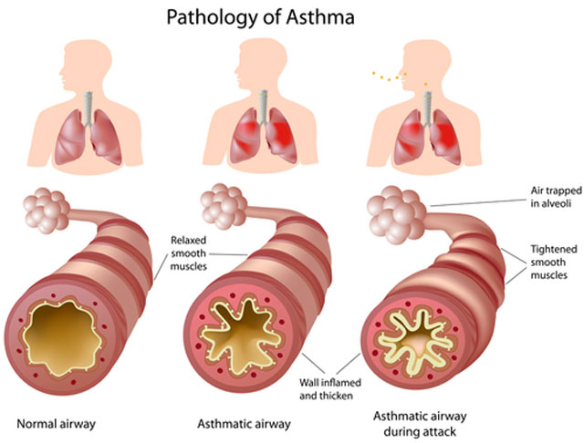 hipertenzijos vaistas nuo astmos)