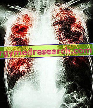 idiopatinė hipertenzija yra
