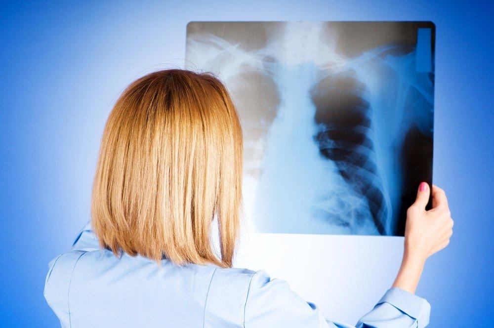 kaip ir kaip gydyti plaučių hipertenziją)