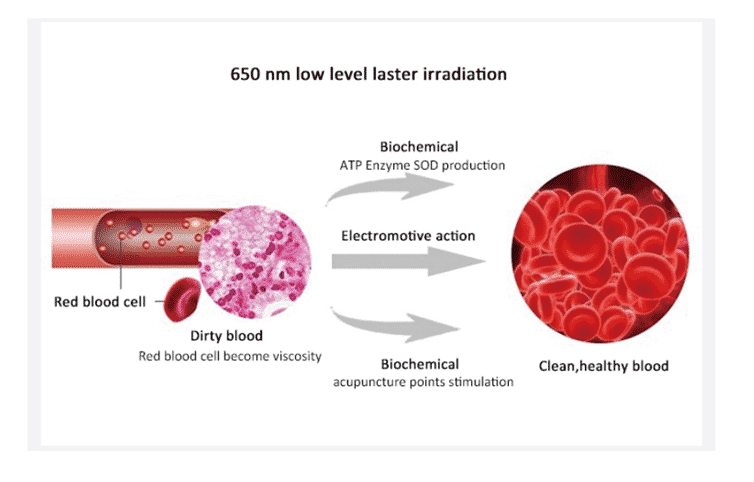 Vasara ir arterinė hipertenzija | jusukalve.lt