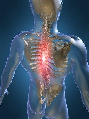 krūtinės ląstos stuburo osteochondrozė ir hipertenzija