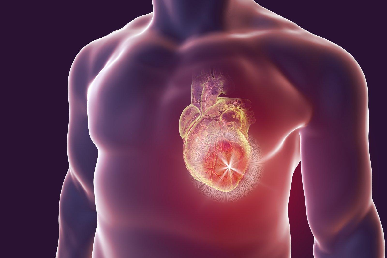 moterų diabetinės širdies sveikata